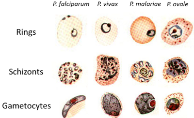 malaria infection and relatively new species New malaria parasites are found quite regularly non-human forms of malaria are discovered relatively frequently in other species new infections are.